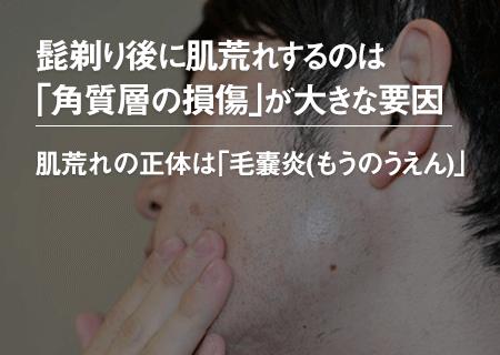 髭剃りで肌荒れしてしまうのは、「角質層の損傷」が大きな原因