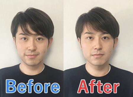 メンズコンシーラーの青髭への効果を写真で比較