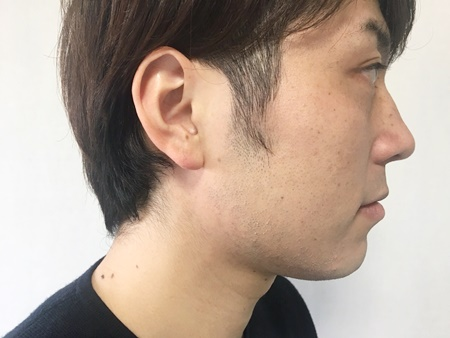 ヒゲ脱毛によって起こる可能性のある肌荒れは、「赤み・炎症」「ニキビ」「毛嚢炎(もうのうえん)」の3種類です