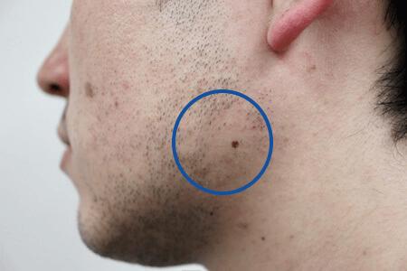 レーザー脱毛の効果
