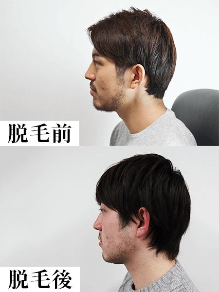クリニックのレーザー脱毛1回目の効果-脱毛前