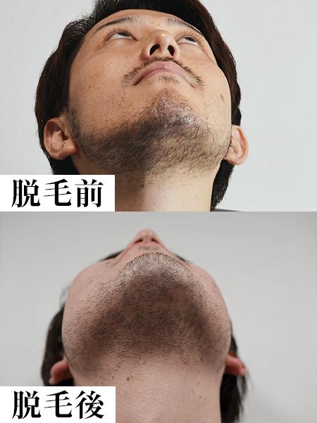 クリニックのレーザー脱毛1回目の効果-脱毛後
