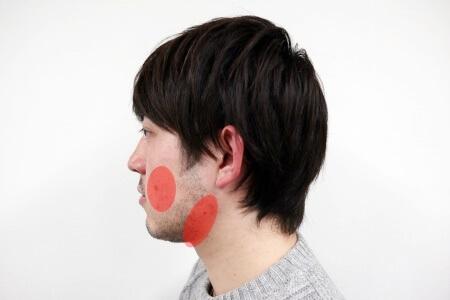 鼻下やフェイスラインには濃く太いヒゲが生えている